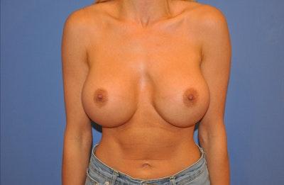 Implant Exchange Gallery - Patient 13574662 - Image 2