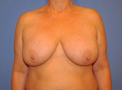Implant Exchange Gallery - Patient 13574664 - Image 1