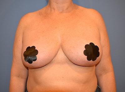 Implant Exchange Gallery - Patient 13574664 - Image 2