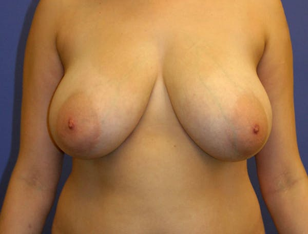 Breast Reduction Gallery - Patient 13574665 - Image 1