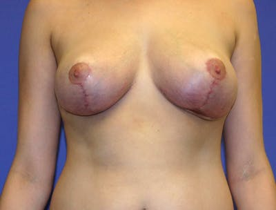 Breast Reduction Gallery - Patient 13574665 - Image 2