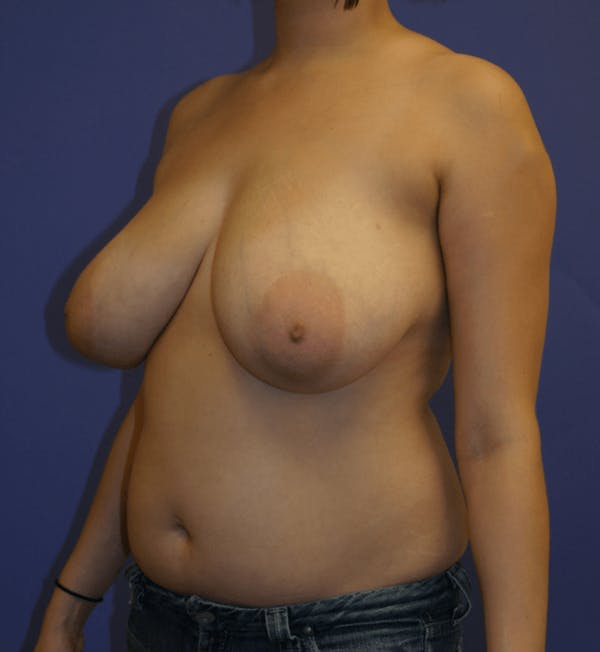 Breast Reduction Gallery - Patient 13574665 - Image 3