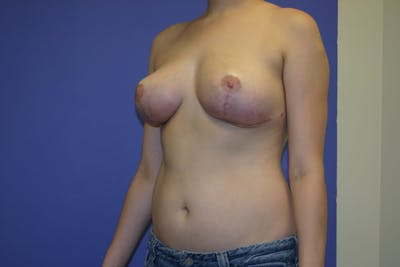 Breast Reduction Gallery - Patient 13574665 - Image 4