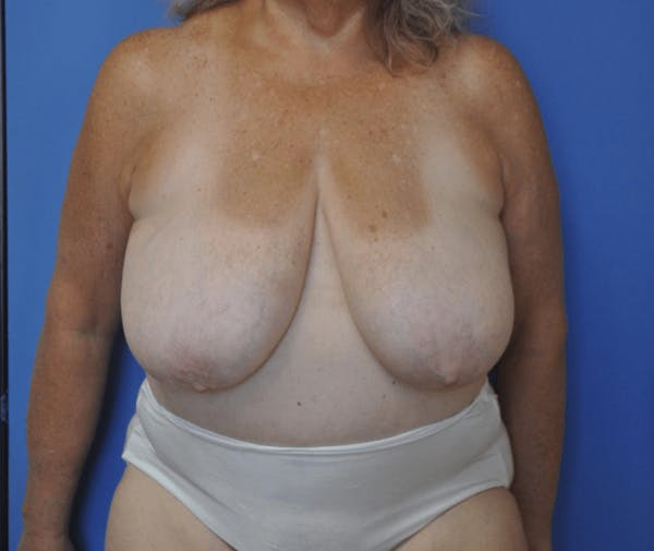 Breast Reduction Gallery - Patient 13574666 - Image 1