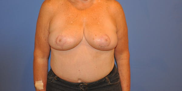 Breast Reduction Gallery - Patient 13574666 - Image 2