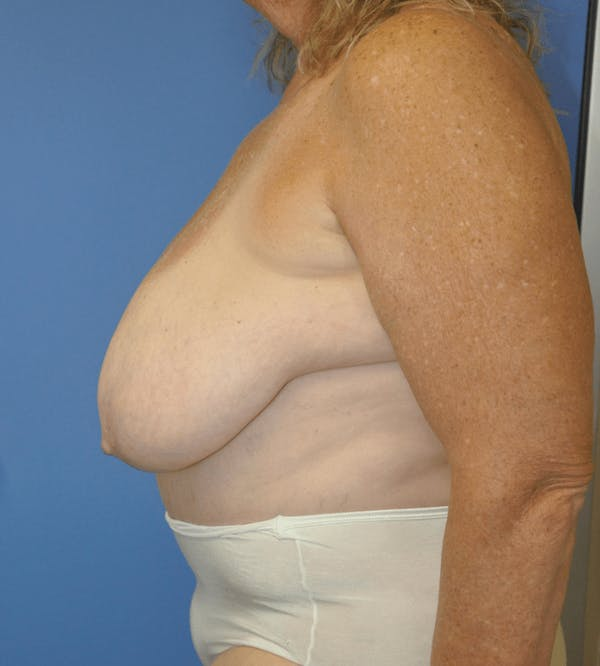 Breast Reduction Gallery - Patient 13574666 - Image 3