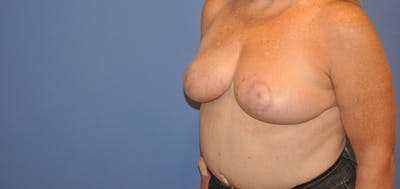 Breast Reduction Gallery - Patient 13574666 - Image 4
