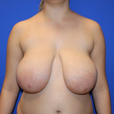 Breast Reduction Gallery - Patient 13574667 - Image 1