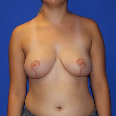 Breast Reduction Gallery - Patient 13574667 - Image 2