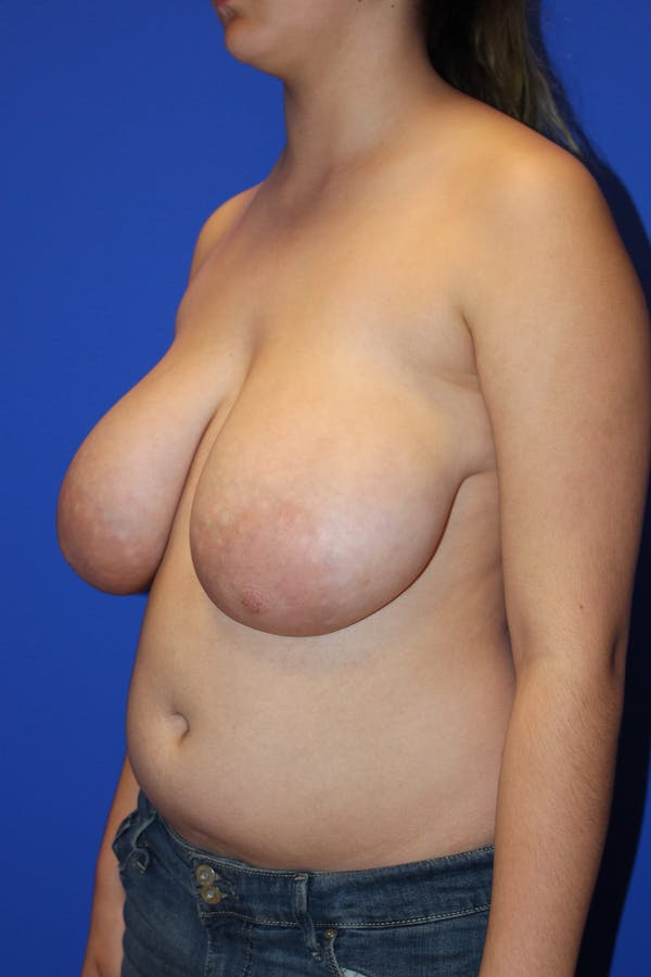 Breast Reduction Gallery - Patient 13574667 - Image 3