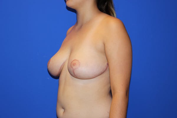 Breast Reduction Gallery - Patient 13574667 - Image 4