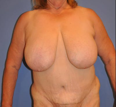 Breast Reduction Gallery - Patient 13574668 - Image 1