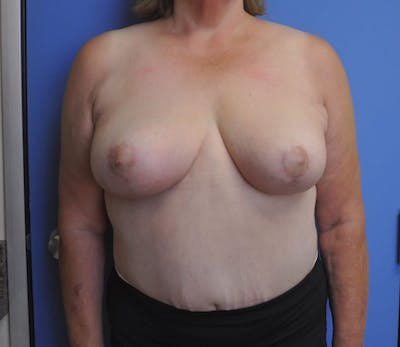 Breast Reduction Gallery - Patient 13574668 - Image 2