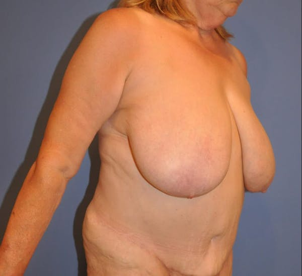 Breast Reduction Gallery - Patient 13574668 - Image 3