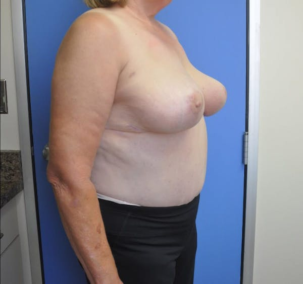 Breast Reduction Gallery - Patient 13574668 - Image 4
