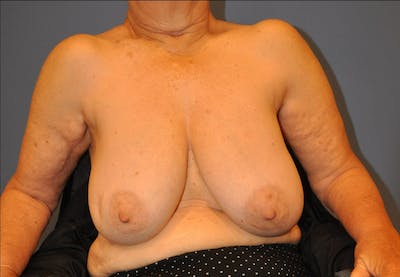 Breast Reduction Gallery - Patient 13574669 - Image 1