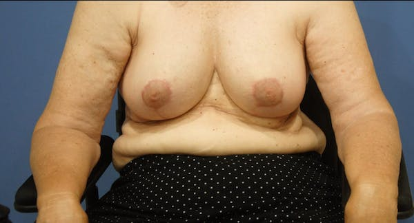 Breast Reduction Gallery - Patient 13574669 - Image 2