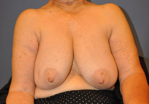 Breast Reduction Gallery - Patient 13574669 - Image 3