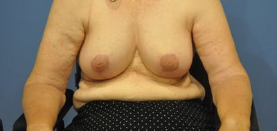 Breast Reduction Gallery - Patient 13574669 - Image 4