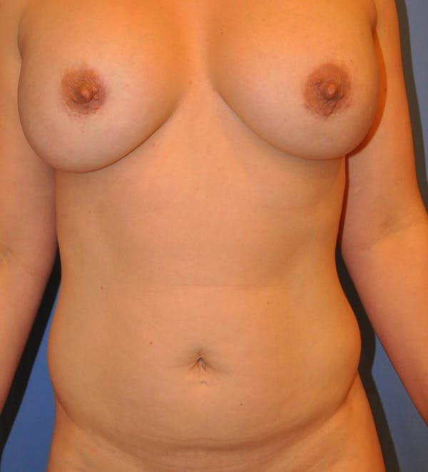 Breast Fat Grafting Gallery - Patient 13574673 - Image 1