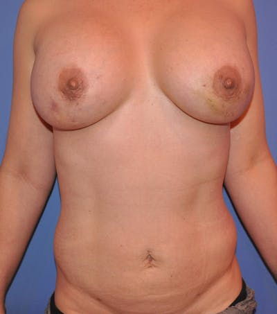 Breast Fat Grafting Gallery - Patient 13574673 - Image 2