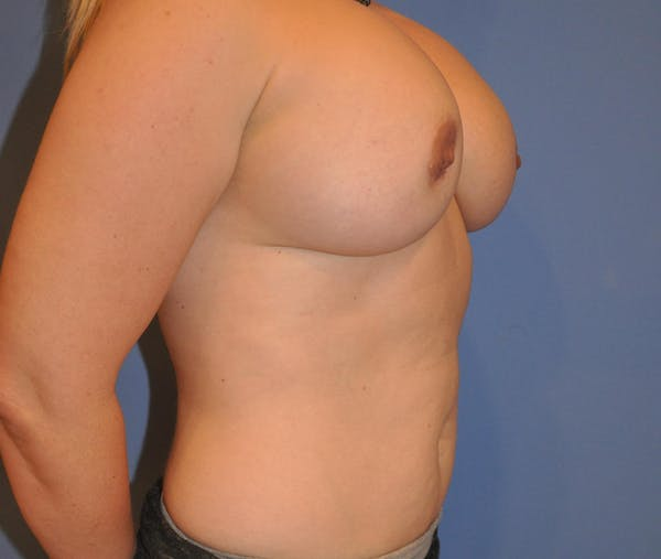 Breast Fat Grafting Gallery - Patient 13574673 - Image 3