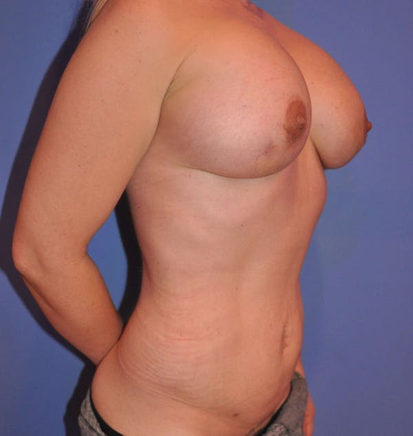 Breast Fat Grafting Gallery - Patient 13574673 - Image 4