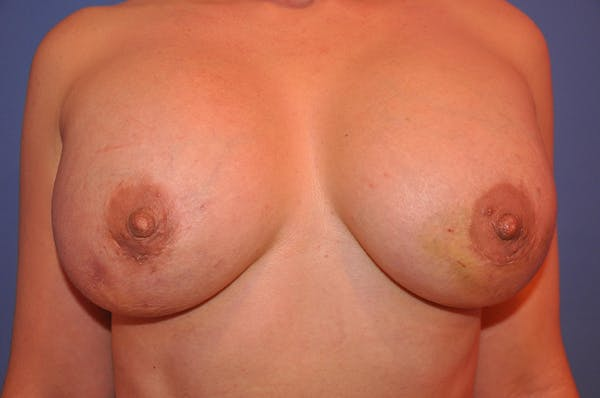 Breast Fat Grafting Gallery - Patient 13574673 - Image 6