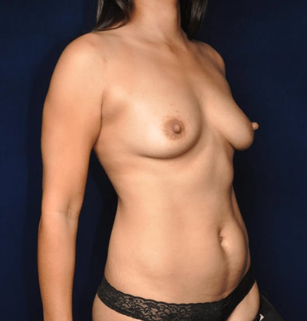 Mommy Makeover Gallery - Patient 13574682 - Image 3