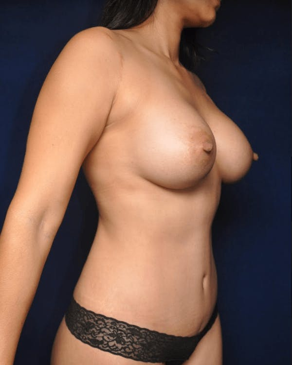 Mommy Makeover Gallery - Patient 13574682 - Image 4