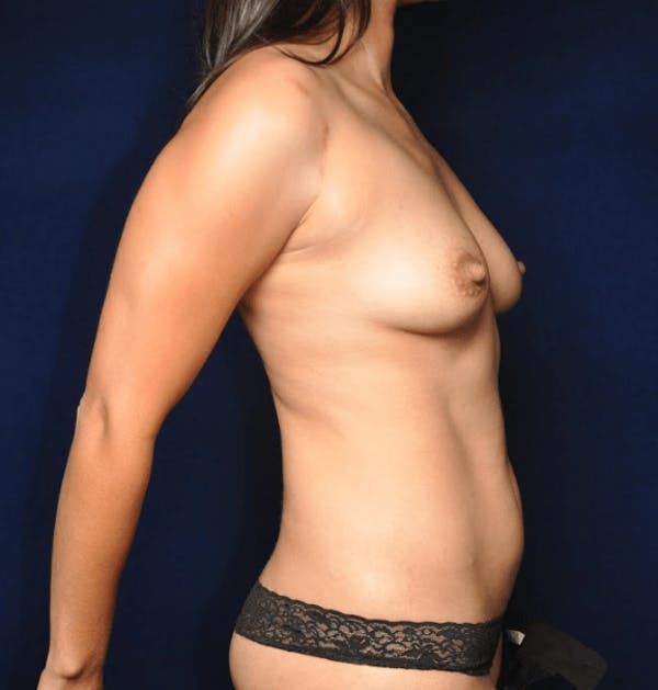 Mommy Makeover Gallery - Patient 13574682 - Image 5