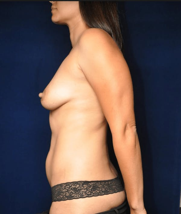 Mommy Makeover Gallery - Patient 13574682 - Image 9