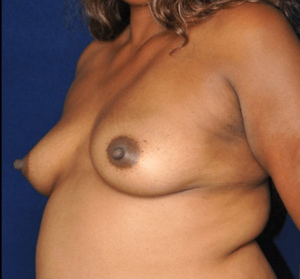 Mommy Makeover Gallery - Patient 13574683 - Image 3