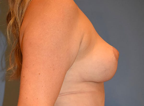 Mommy Makeover Gallery - Patient 13574684 - Image 4