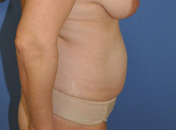 Mommy Makeover Gallery - Patient 13574684 - Image 5