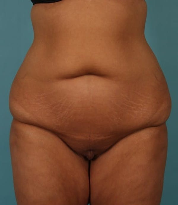 Tummy Tuck (Abdominoplasty) Gallery - Patient 13574686 - Image 1