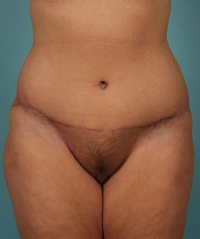Tummy Tuck (Abdominoplasty) Gallery - Patient 13574686 - Image 2