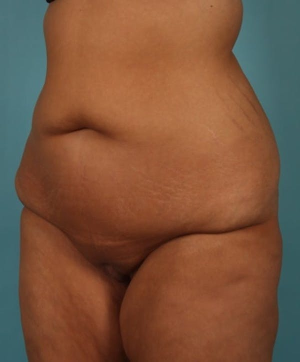 Tummy Tuck (Abdominoplasty) Gallery - Patient 13574686 - Image 3