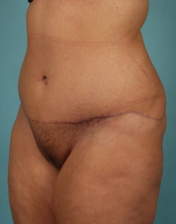 Tummy Tuck (Abdominoplasty) Gallery - Patient 13574686 - Image 4