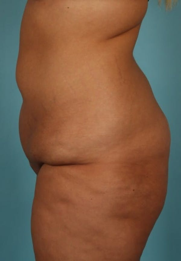 Tummy Tuck (Abdominoplasty) Gallery - Patient 13574686 - Image 5