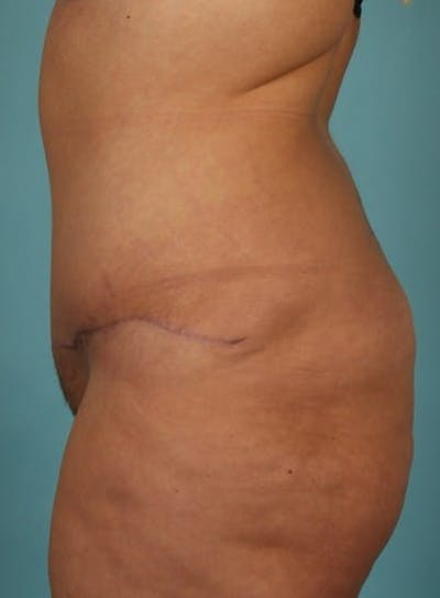 Tummy Tuck (Abdominoplasty) Gallery - Patient 13574686 - Image 6