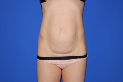 Tummy Tuck (Abdominoplasty) Gallery - Patient 13574687 - Image 1