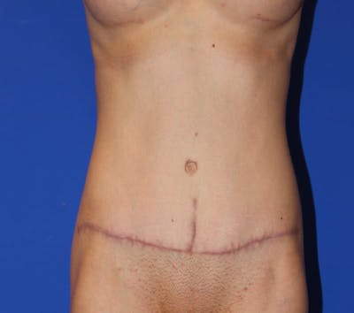 Tummy Tuck (Abdominoplasty) Gallery - Patient 13574687 - Image 2