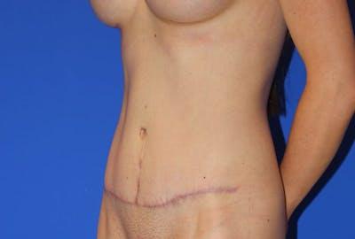 Tummy Tuck (Abdominoplasty) Gallery - Patient 13574687 - Image 4