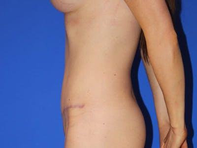 Tummy Tuck (Abdominoplasty) Gallery - Patient 13574687 - Image 6