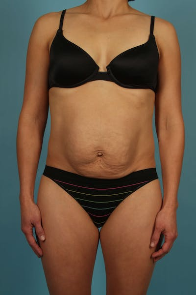 Tummy Tuck (Abdominoplasty) Gallery - Patient 13574688 - Image 1
