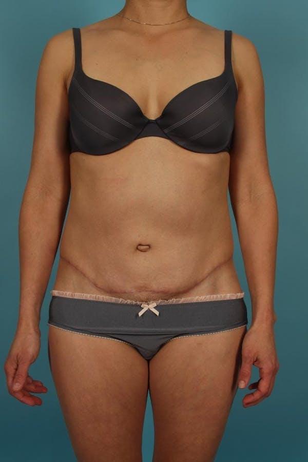 Tummy Tuck (Abdominoplasty) Gallery - Patient 13574688 - Image 2