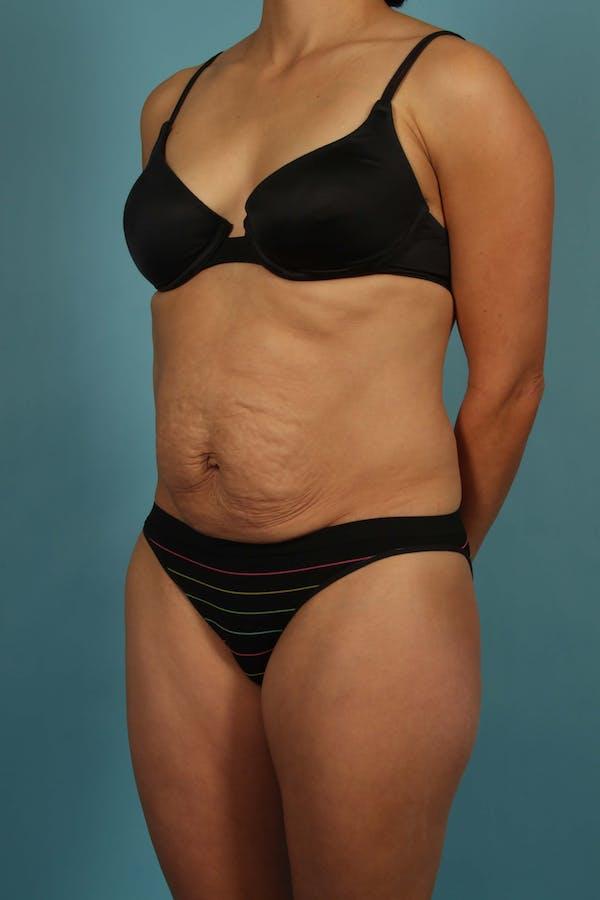 Tummy Tuck (Abdominoplasty) Gallery - Patient 13574688 - Image 3