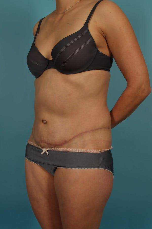 Tummy Tuck (Abdominoplasty) Gallery - Patient 13574688 - Image 4