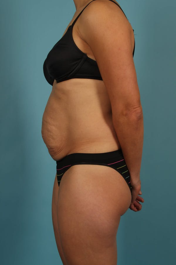 Tummy Tuck (Abdominoplasty) Gallery - Patient 13574688 - Image 5